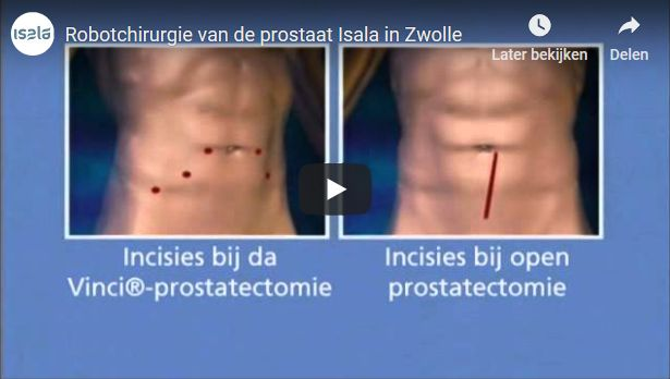 Screenshot video robotchirurgie bij prostaatkanker