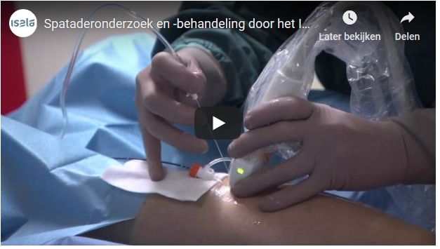 Screenshot video spataderonderzoek