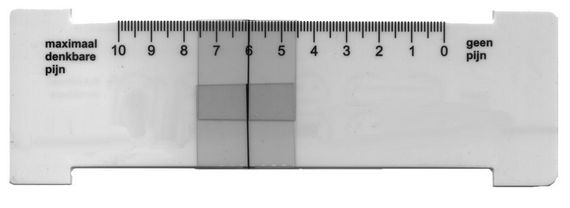 Figure 1 Ruler painscore scale 1 to 10
