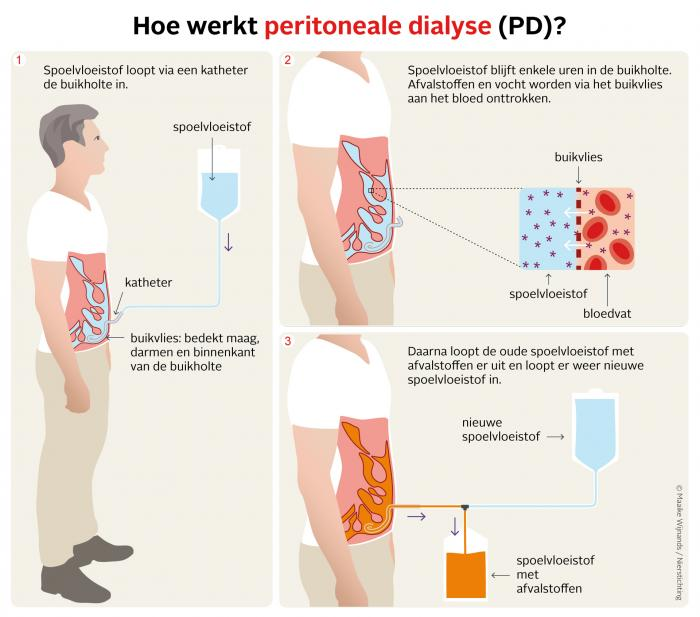 Werking peritoneale dialyse